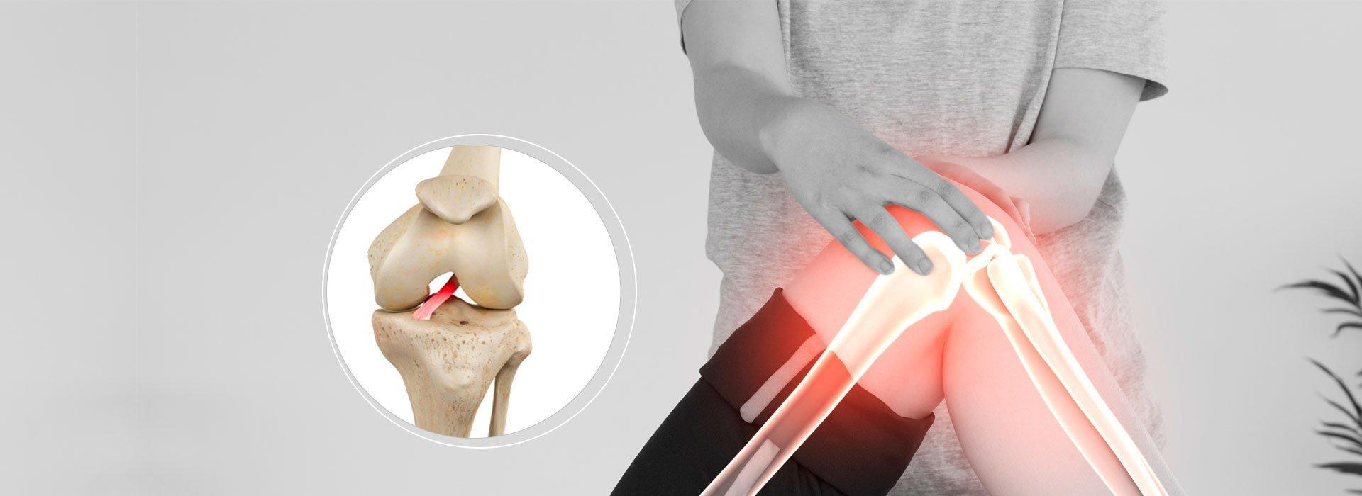 Lesão do Ligamento Cruzado Anterior especialista de joelho